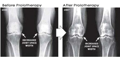 Prolotherapy And Prp Vitalia Healthcare Naturopath